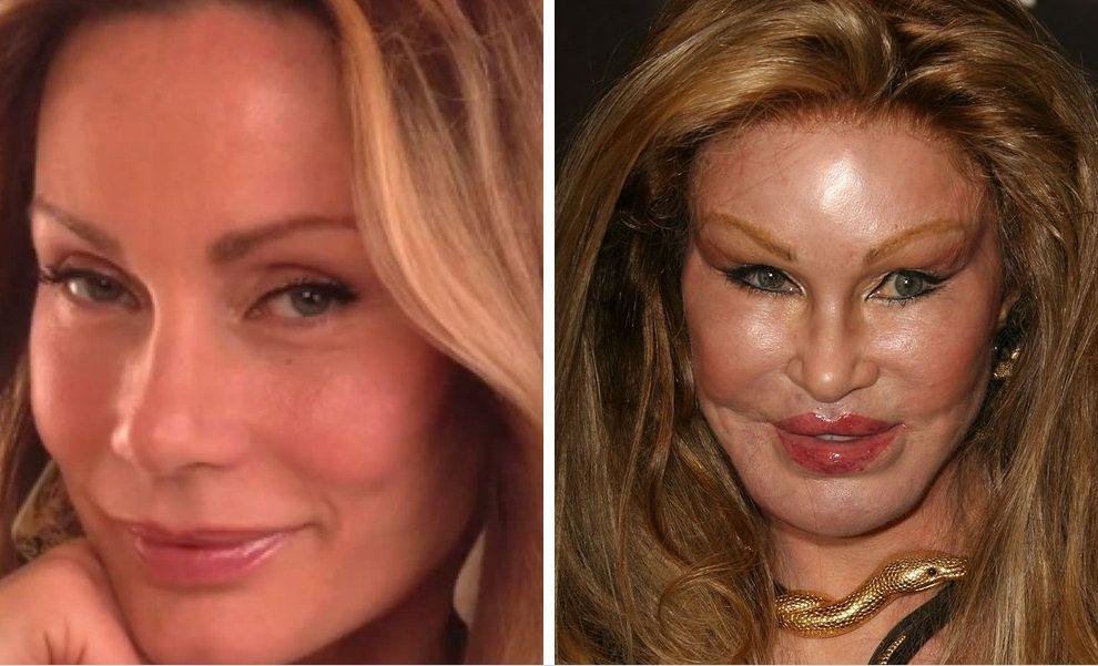 12 Stars Qui Ont Complètement Raté Leur Chirurgie Esthétique